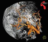 Arterial malformation,3D CT scan