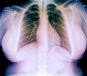 Heart and lungs in obesity,chest X-ray