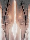 Blocked knee artery,angiogram