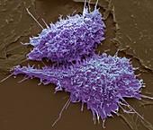 MLV infected cells,SEM