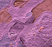 Urinary tract infection,SEM