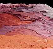 Human fingertip skin,SEM