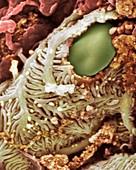 Kidney glomerulus,SEM