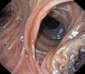 Small intestine anastamosis,endoscopy image