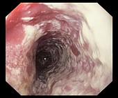 Oesophageal thrush,endoscopy image