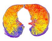 Interstitial lung disease,3D CT scan