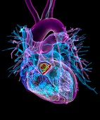 Aortic valve replacement,3D CT scan