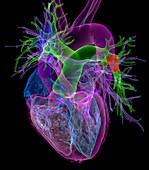 Pulmonary embolism,3D CT scan