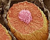 Seminiferous tubules in the testis,SEM
