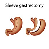 Sleeve gastrectomy,illustration