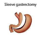 Sleeve gastrectomy,illustration
