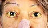 Kayser-Fleischer rings in eyes due to liver disease