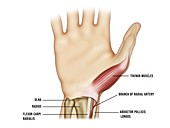 Radial artery cannulation site, illustration