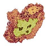 Lung cancer, TEM