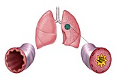 Lung airway inflammation, comparative illustrations