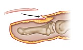 Reinserting a fingernail, illustration