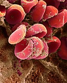 Blood clot, SEM