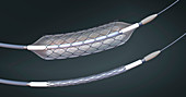 Stents and balloon catheters, illustration