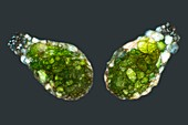 Shelled amoeba, light micrograph