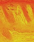 Merkel nerve endings, light micrograph