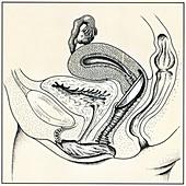 Diaphragm contraceptive in the uterus, illustration