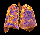 Lungs affected by Covid-19 atypical pneumonia, 3d CT scan