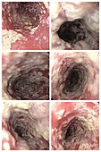 Oesophageal candidiasis, endoscopy images