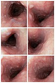 Glycogenic acanthosis, endoscopy images