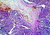Adenoma and papilloma of the rectum, light micrograph