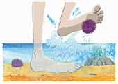Standing on sea urchin, illustration