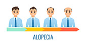 Male alopecia stages, illustration