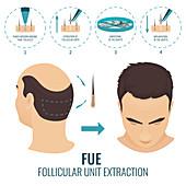 FUE hair loss treatment in men, illustration