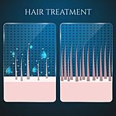 Hair follicle treatment, illustration