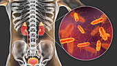 Acute pyelonephritis caused by E coli, illustration