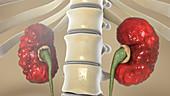 Chronic pyelonephritis, illustration