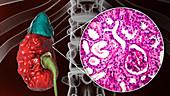 Chronic pyelonephritis, illustration and light micrograph