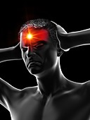 Man with headache, illustration