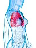 Diseased lung, illustration