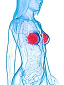 Diseased mammary glands, illustration