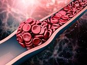 Blood clot, illustration
