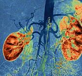 Kidney blood vessels, angiogram