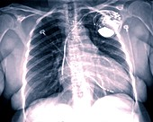 Pacemaker for heart failure, X-ray