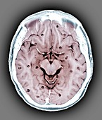 Cysticercosis of the brain, MRI scan