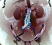 Aortic aneurysm stent, CT scan
