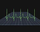 Normal ECG trace
