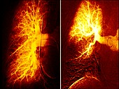 Pulmonary embolism and healthy lung, angiograms