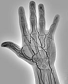 Blocked hand artery, angiogram