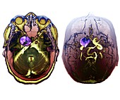 Subarachnoid haemorrhage, MRI angiogram