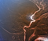Stroke, angiogram