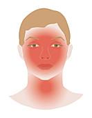 Allergic response, illustration